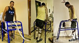 Paciente utiliza Estimulação Elétrica Neuromuscular para exercitar os membros inferiores