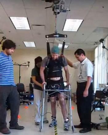 Homem caminha com aparelho ortopédico cercado por três pessoas
