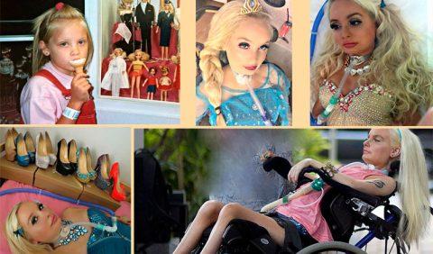 Cinco fotografias dispostas sobre um fundo bege em que apresenta uma garotinha tomando sorvete e quatro outras de uma jovem em cadeira de rodas e tubo respiratório na traquéia, produzida como a boneca barbie