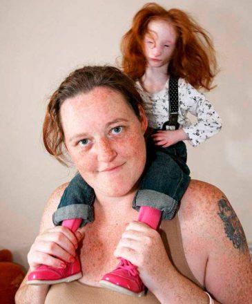 Mulher com sua filha, que sofre de nanismo primordial, sentada em seus ombros